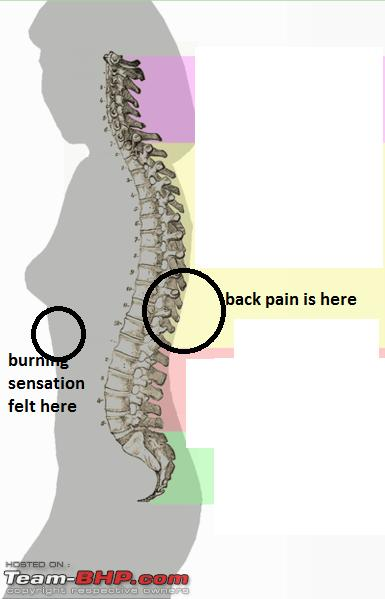 Name:  385pxSpinal_column_curvature_2011.png Views: 568 Size:  98.7 KB